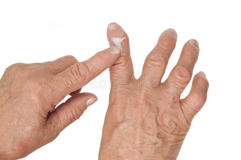 Rheumatoid arthritis of the fingers. Using medical cream stock photos