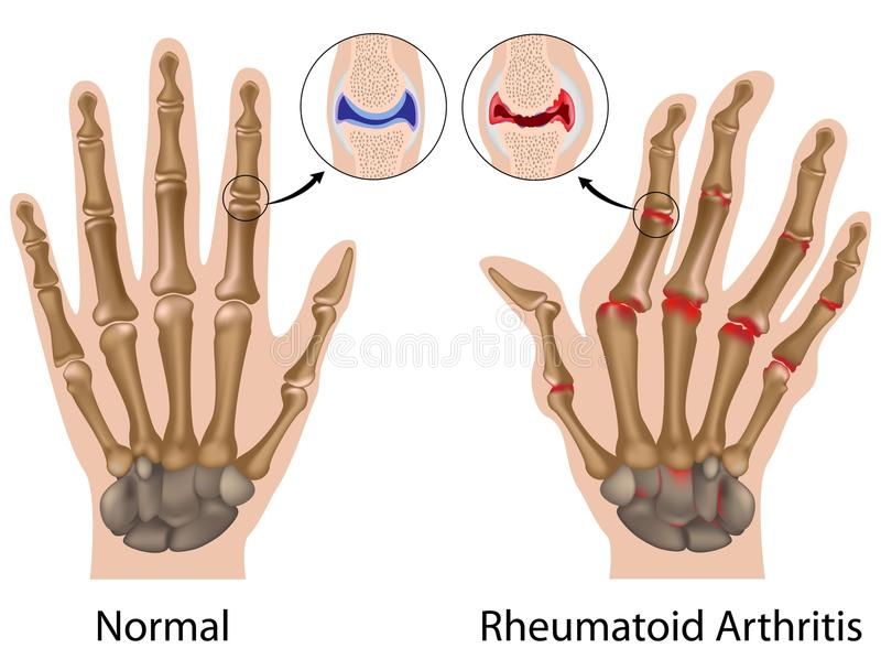 Rheumatoid arthritis of hand royalty free illustration