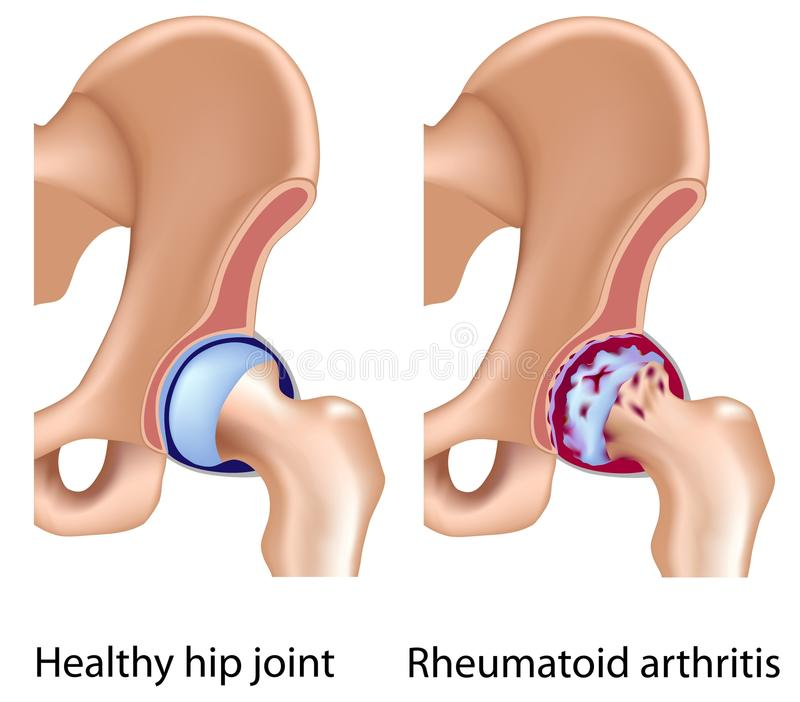 Rheumatoid arthritis of hip joint. With synovial membrane inflammation and cartilage and bones erosion, eps8 vector illustration