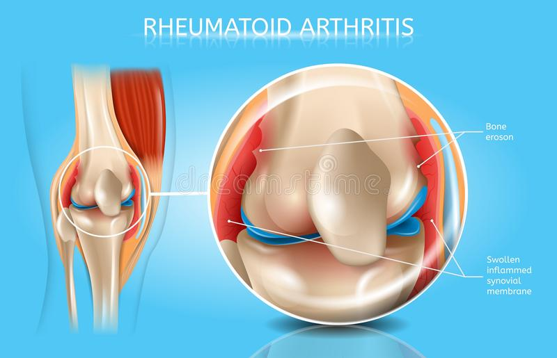 Rheumatoid Arthritis Vector Medical Scheme. Rheumatoid Arthritis Realistic Vector Anatomical Chart With Magnified Inflamed And Swollen Synovial Membrane, Bone stock illustration