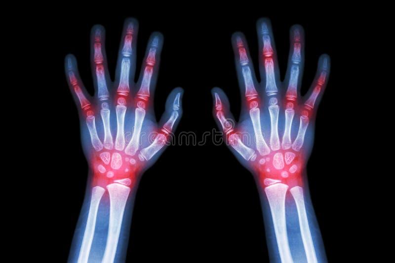 Rheumatoid artretyzm, Dnawy artretyzm, nauka i On, (Ekranowy promieniowanie rentgenowskie oba ręki dziecko z wielokrotnością spaj fotografia stock