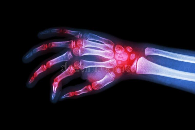 Rheumatoid artretyzm, Podagryczny artretyzm (Ekranowa promieniowanie rentgenowskie ręka dziecko z artretyzmem przy wielokrotności zdjęcie stock