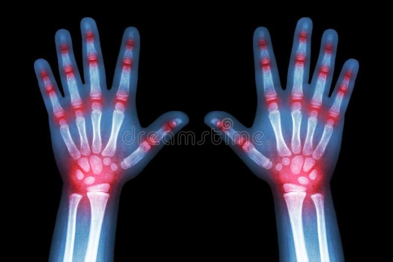 Rheumatoid artretyzm (promieniowania rentgenowskiego dziecka ręki i wielokrotność łączny artretyzm) obrazy stock