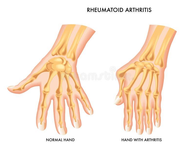 rheumatoid artrit stock illustrationer