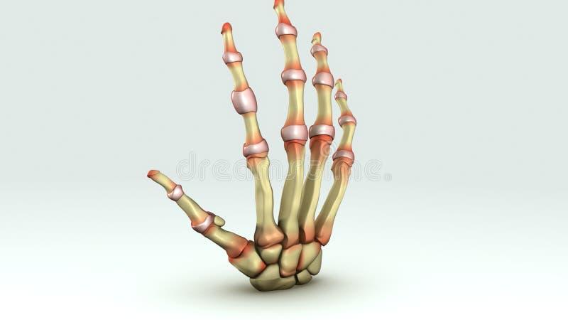 rheumatoid artrit vektor illustrationer