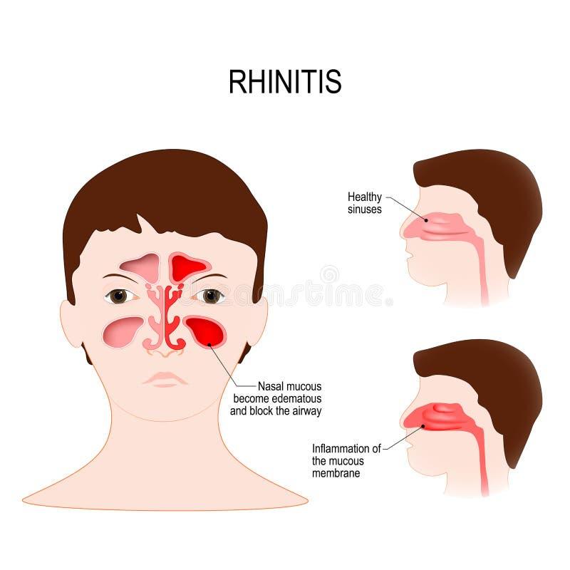 Rhinitis coryza zdrowi sinuses i sinuses z rozognieniem royalty ilustracja