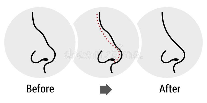 Rhinoplasty stock illustrationer
