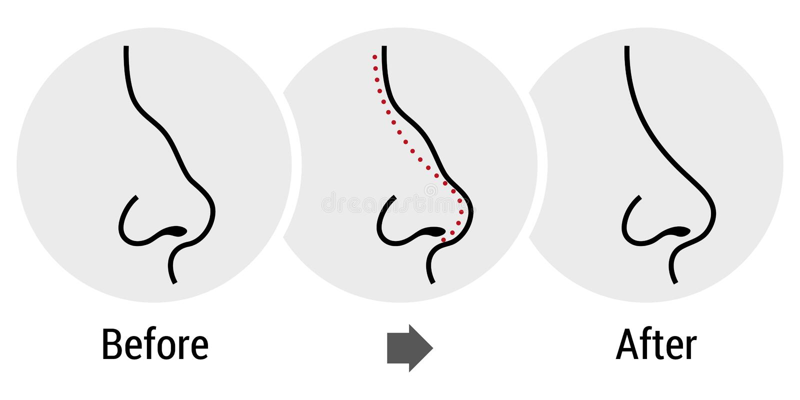 Rhinoplasty иллюстрация штока