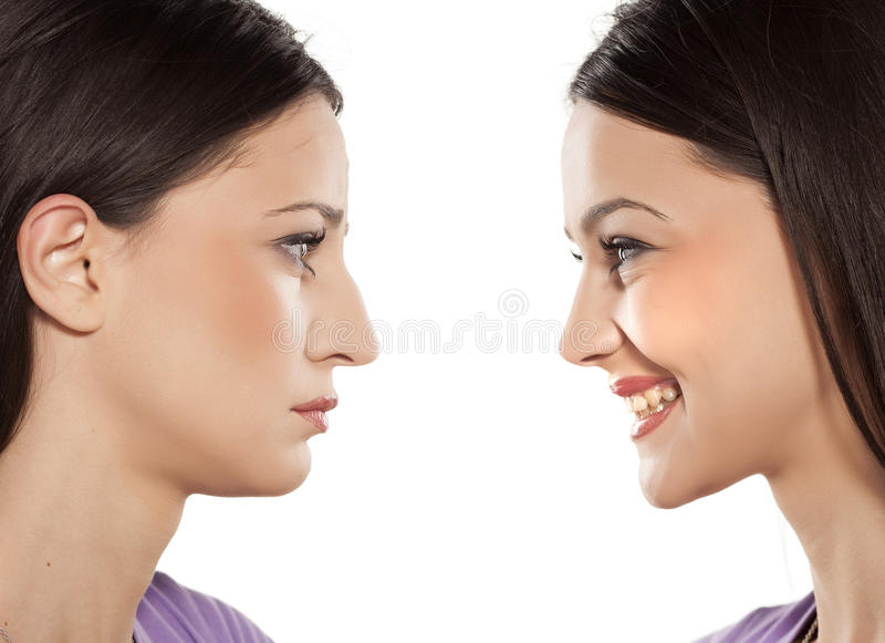 Rhinoplasty stock foto