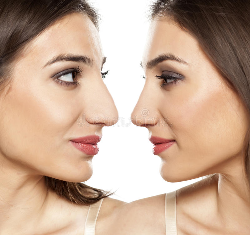 Before and after rhinoplasty. Comparative portrait of a beautiful young woman, before and after rhinoplasty royalty free stock images