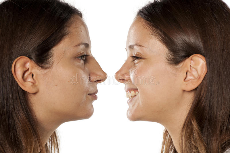 Rhinoplasty. Comparative portrait of the same woman, before and after rhinoplasty royalty free stock image