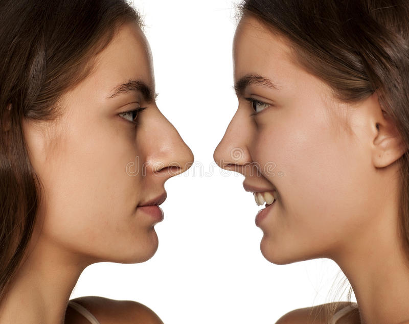 Rhinoplasty. Comparative portrait of the same woman, before and after rhinoplasty stock photo