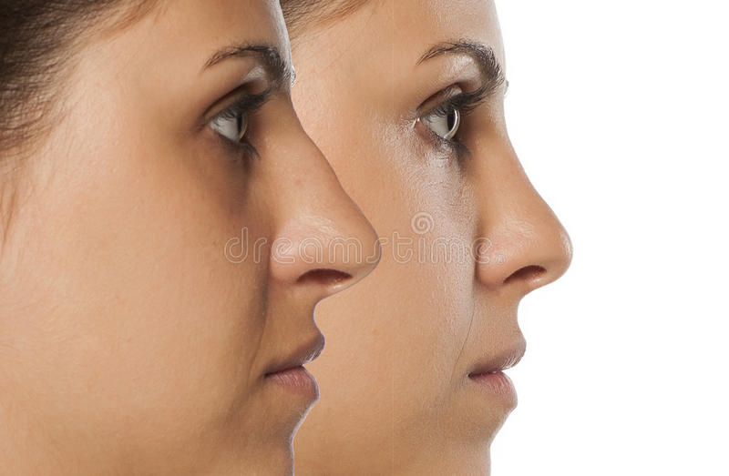 Rhinoplasty. Comparative portrait of a young woman before and after nose correction stock images