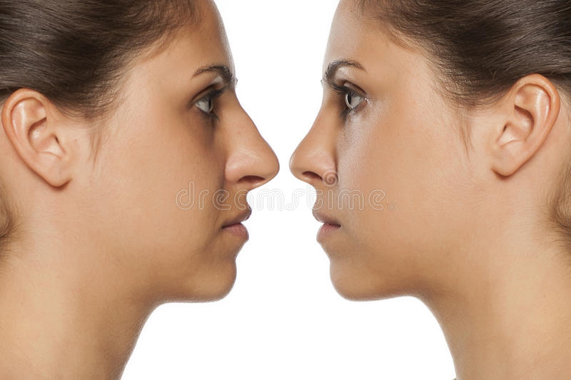 Rhinoplasty. Comparative portrait of a young woman before and after nose correction royalty free stock image