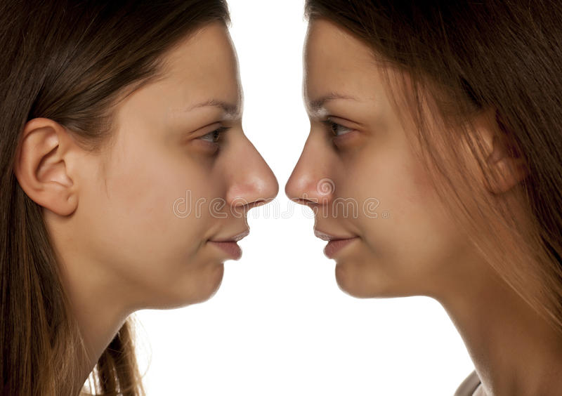Rhinoplasty. Comparative portrait of a young woman before and after nose correction on white background stock photos