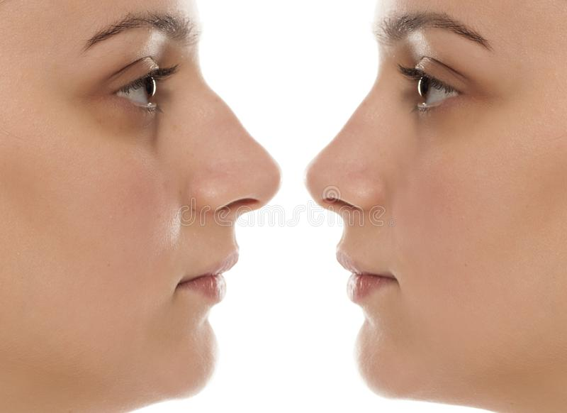 Rhinoplasty. Comparative portrait of a young woman before and after nose surgery stock image