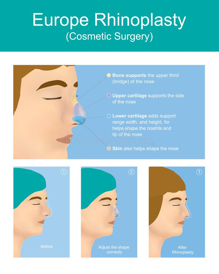 Rhinoplasty plastic surgery. Rhinoplasty plastic surgery is a plastic surgery creates a aesthetic, and facially proportionate nose for correcting or other vector illustration