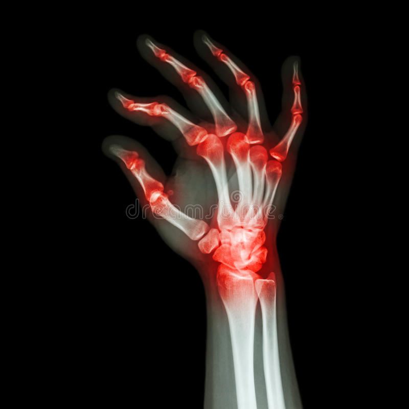 Rhumatisme articulaire, arthrite Gouty images stock