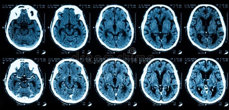 Ricerca di CT del cervello, senza e con mezzi di contrasto immagini stock
