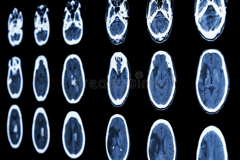 Ricerca di CT del colpo ischemico di manifestazione del cervello e del colpo emorragico fotografie stock