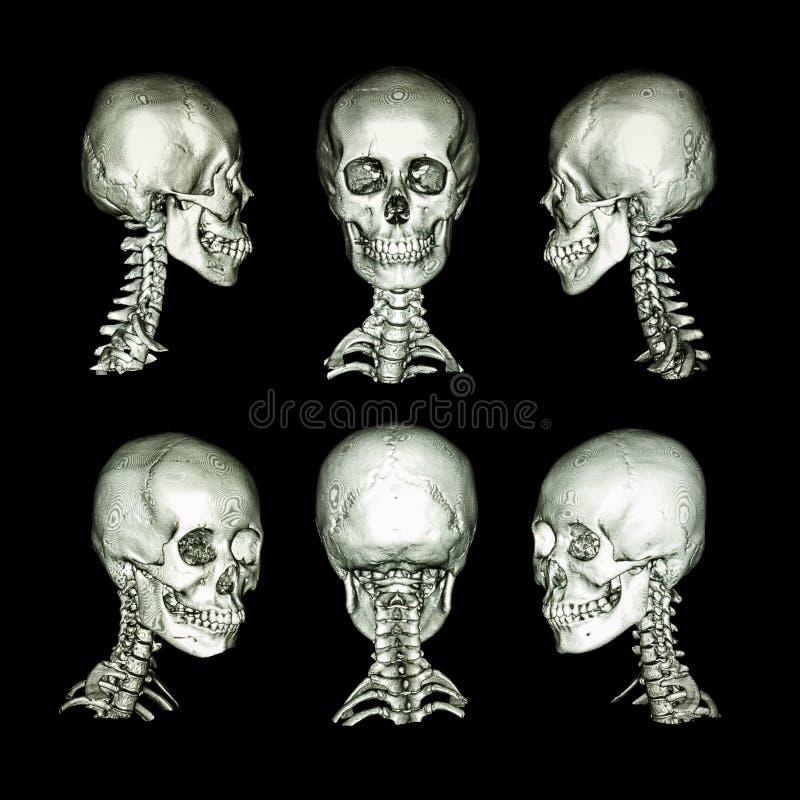 Ricerca di CT ed immagine 3D Cranio umano normale e spina dorsale cervicale Tutta la direzione immagine stock libera da diritti