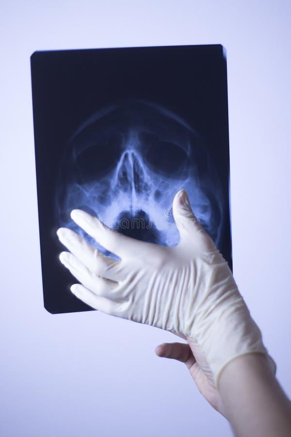 Download Ricerca Medica Del Fronte Dei Raggi X Immagine Stock - Immagine di raggio, ferita: 117976711