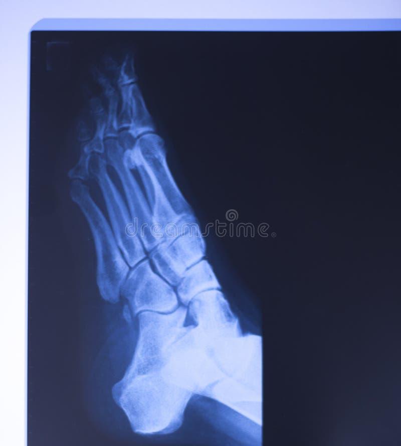 Download Ricerca Medica Del Piede Dei Raggi X Immagine Stock - Immagine di caviglia, clinica: 117976699