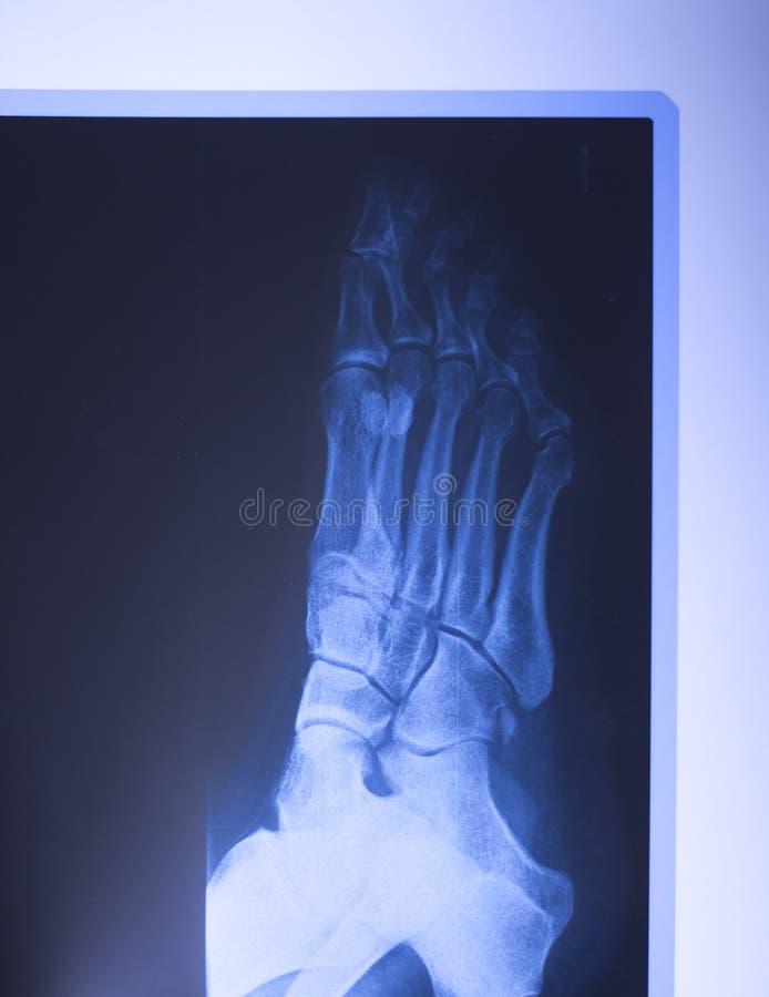 Download Ricerca Medica Del Piede Dei Raggi X Fotografia Stock - Immagine di anatomia, scienza: 117976710