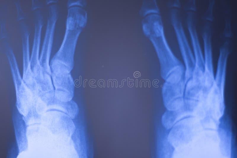 Download Ricerca Medica Del Piede Dei Raggi X Fotografia Stock - Immagine di paziente, ferita: 117976764