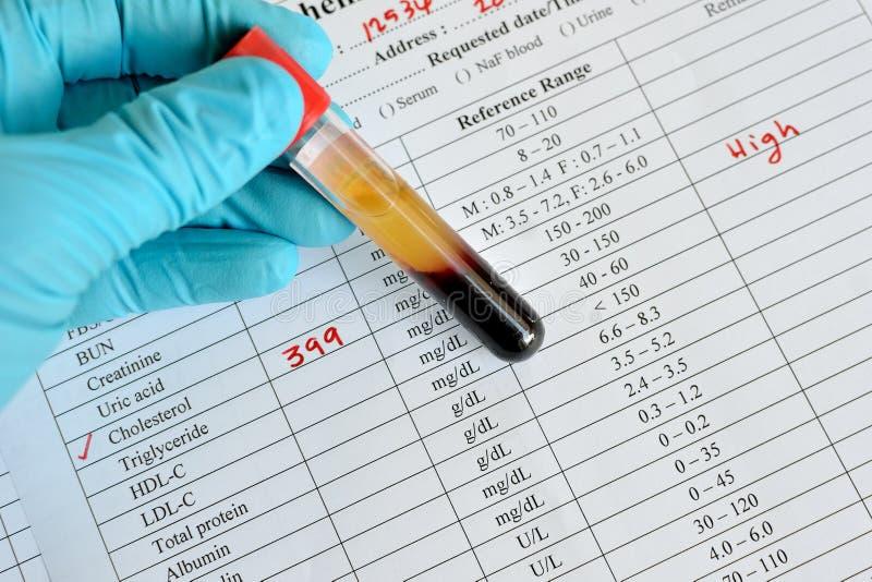 Riche en cholestérol images libres de droits