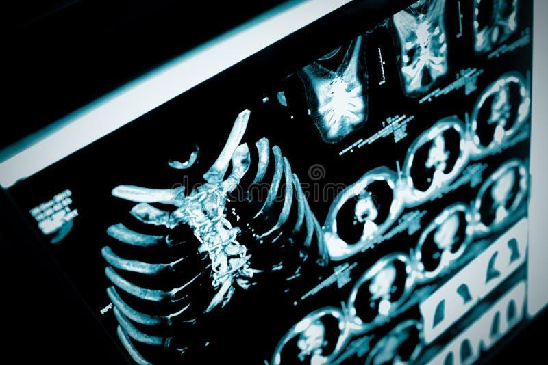 Ricostruzione di CT in 3D del petto del paziente immagini stock libere da diritti