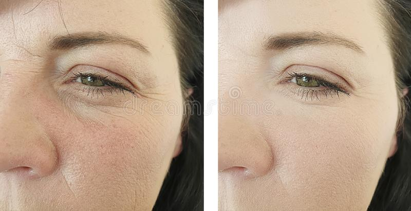 Rides de femme avant et après des traitements mûrs de remplisseur de correction de résultat images stock