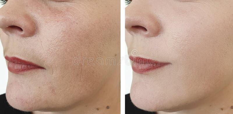Rides de visage de femme avant et après le collage de levage de correction de retrait de résultat de traitement de santé de tensi photographie stock libre de droits