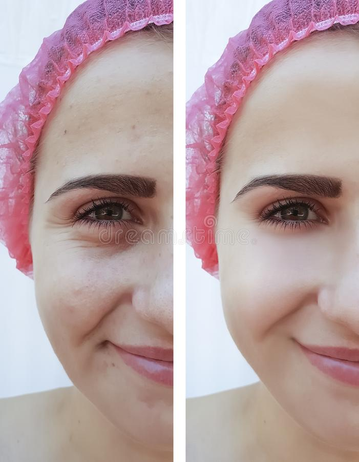 Rides femelles d'oeil avant et après la cosmétologie de traitements photo libre de droits