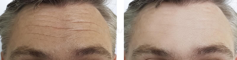 Rides masculines de front avant et après des procédures images stock