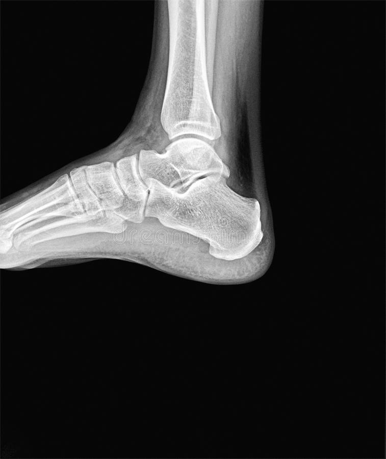 Right Ankle X Ray Side Scan Stock Image Image Of Joint Doctor