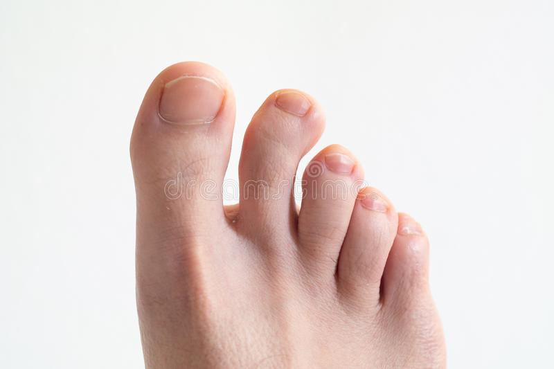 Right Caucasian male foot top view with bent crooked toe against bright white background close up royalty free stock photos