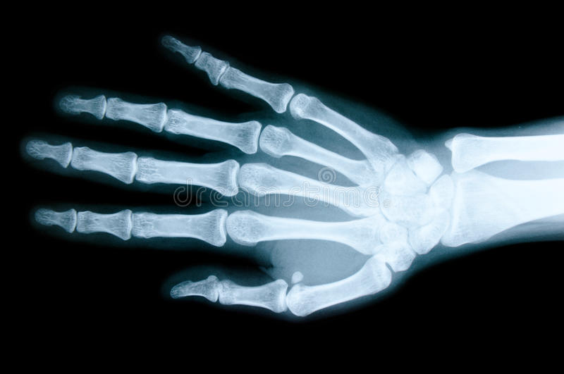 Right hand X-ray stock image. Image of anatomy, black - 69523021