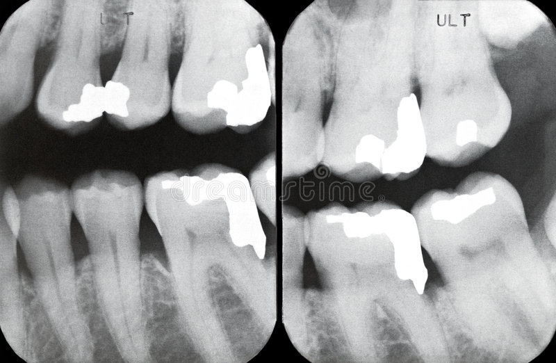 Download Right Periodontal X-rays stock photo. Image of alveolar - 7285692