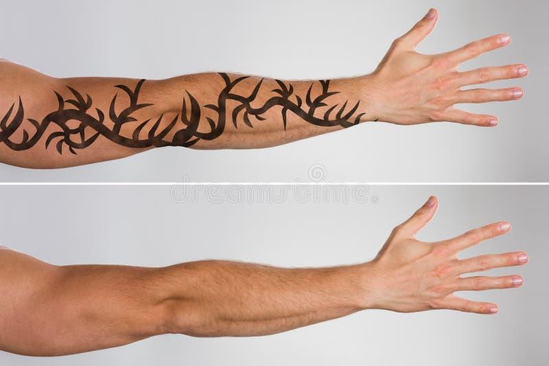 Rimozione del tatuaggio del laser prima e dopo immagini stock