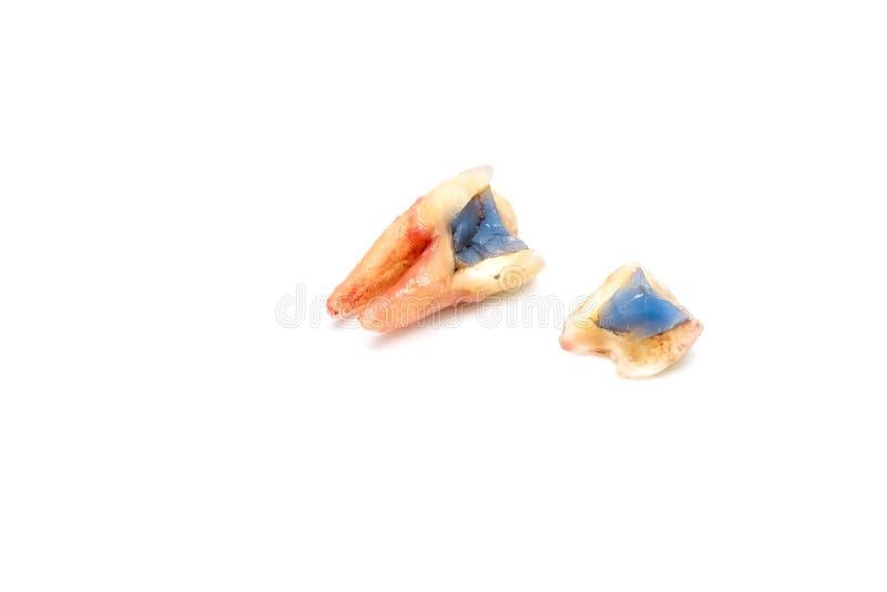 Rimozione rotta del dente con la carie dentale su bianco fotografie stock libere da diritti