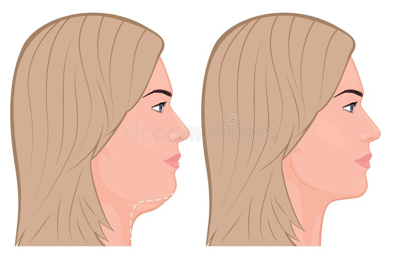 Rimozione view_Double del mento del fronte illustrazione vettoriale