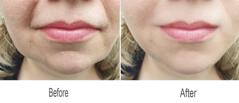 Rimpel, voorhoofd, huid, wang, gezicht, lippen stock afbeelding