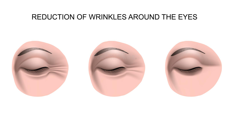 Rimpels rond de ogen vector illustratie