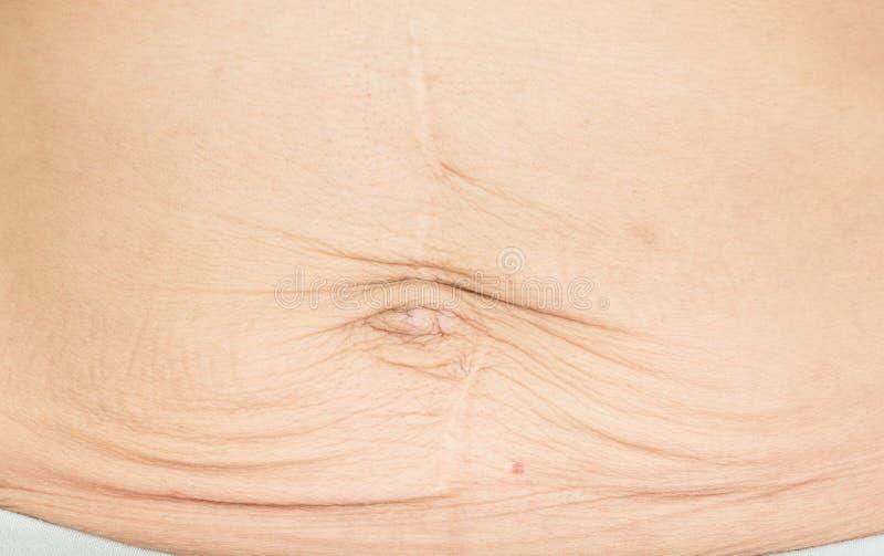 Rimpelshuid van zwangerschap stock afbeelding