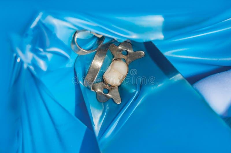 Ripristino del molare di un dente umano con materiale di riempimento fotografie stock