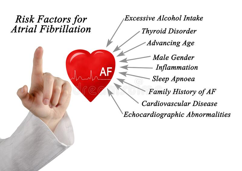 Risk Factors for Atrial Fibrillation. Nine Risk Factors for Atrial Fibrillation stock image