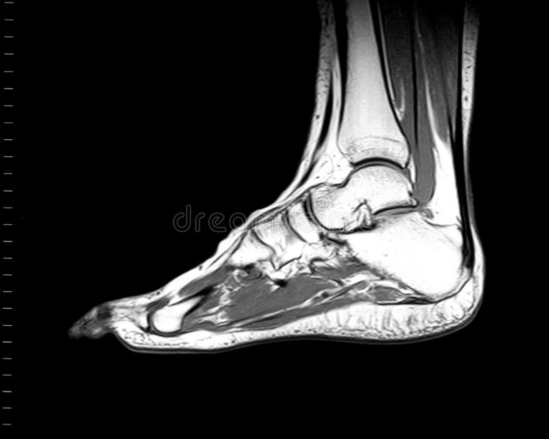 Risonanza magnetica Imaging MRI Scan of Foot/Ankle immagine stock