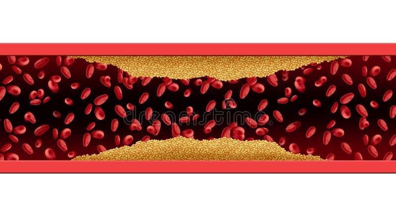 Risque de cholestérol d'artère illustration libre de droits