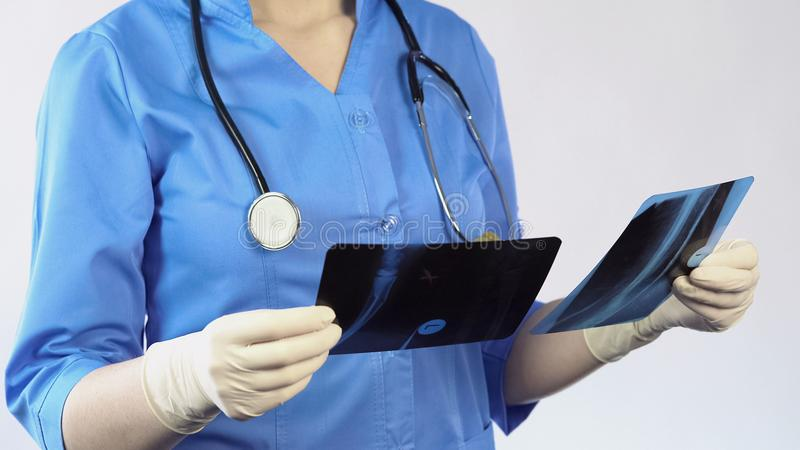 Risultato paziente dei raggi x della tenuta del chirurgo di trauma che fa diagnosi, ricovero ospedaliero immagine stock libera da diritti